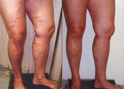 Come togliere uninfiammazione di vene su una gamba