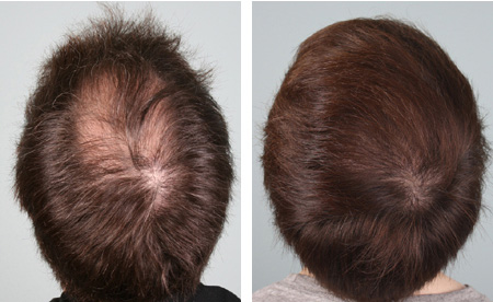 Stress capelli Lo stress favorisce perdita e caduta dei capelli