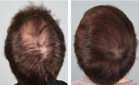 Maschera per capelli sulla base di cognac da una perdita di capelli